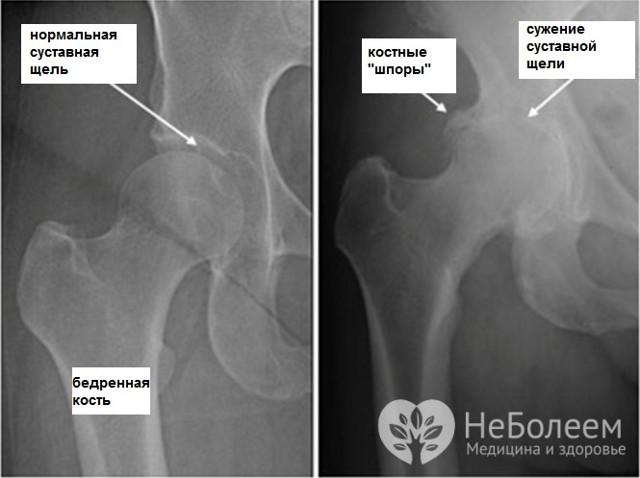 Артроз кульшового суглоба: симптоми і лікування, причини, діагностика