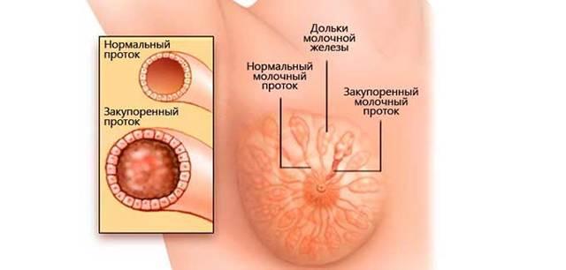 Ектазія молочних проток - симптоми і лікування