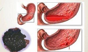 Смердючий і гнильний запаx калу у дорослого: причини і діагностика