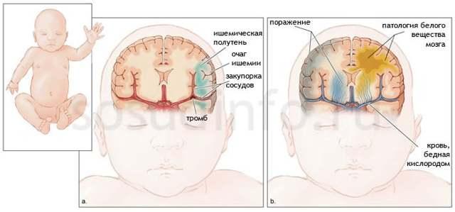 Ішемія головного мозку в літньому віці: симптоми і лікування, наслідки