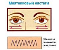 Ністагм очного яблука: що це таке, причини виникнення, види (горизонтальний, вертикальний і інші)