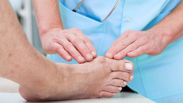 Подагра у чоловіків: ознаки, лікування, особливості, симптоми на ногах