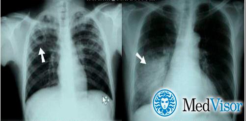 Симптоми і лікування пневмонії при туберкульозі