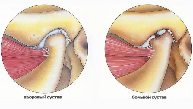 Дисфункція скронево-нижньощелепного суглоба: причини і лікування, можливі патології