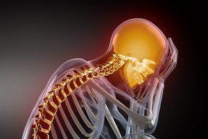 Вертебро-базилярна недостатність на тлі шийного остеохондрозу (ВСН): причини і лікування