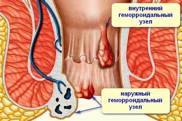Як швидко прибрати геморройную шишку в домашніх умовах: методики видалення вузлів