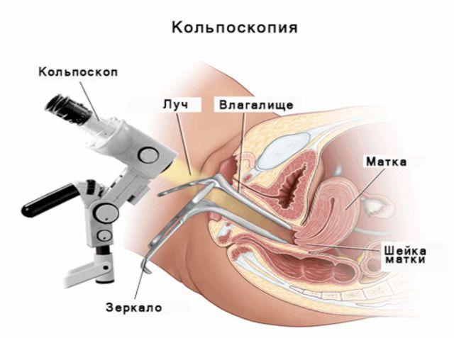 Аденоміозу матки лікування