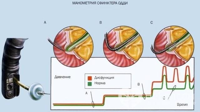 Дисфункція сфінктера Одді: типи, симптоми і лікування (харчування, медикаменти)