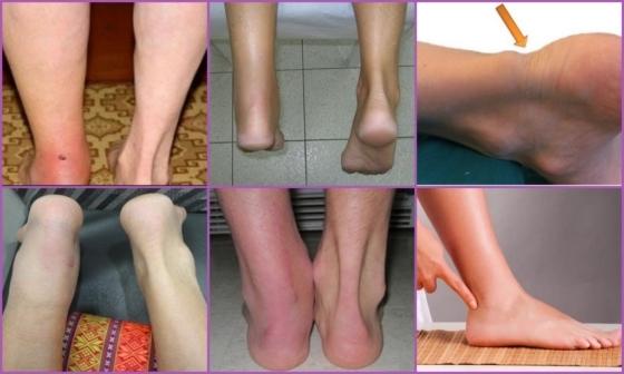Тендиніт ахіллового сухожилля (ахіллотендініт): причини, симптоми, лікування