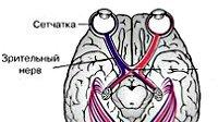Атрофія зорового нерва (часткова, спадна): лікування, симптоми ураження