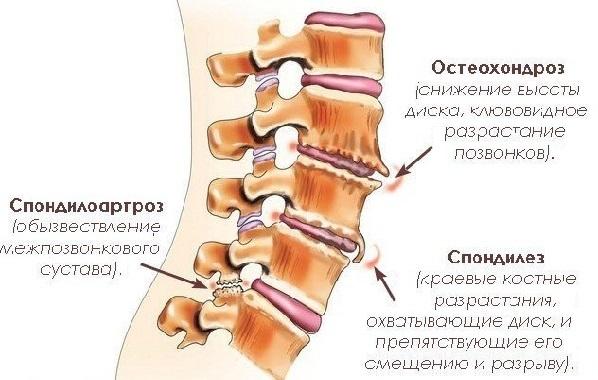 Спондильоз попереково-крижового відділу хребта: що це таке, симптоми, лікування
