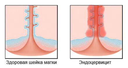 Цервіцит і ендоцервіцит шийки матки, що це таке