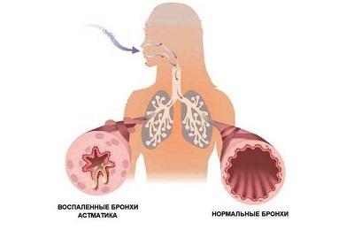 Обструктивний бронхіт - що це, причини і лікування