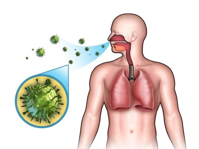 Як передається пневмонія - заразне чи запалення легенів