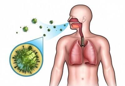 Пневмонія при грипі: причини і як розпізнати