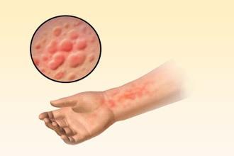 Алергія на сперму: чи може бути і симптоми у чоловіків і жінок