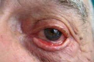 Виворіт нижньої повіки і верхнього: види, симптоми і лікування