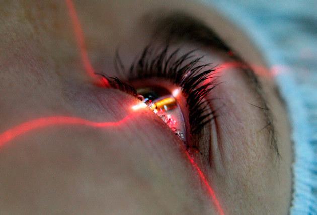 Вторинна катаракта після заміни кришталика: лікування, симптоми, протипоказання лазерної дісцізія