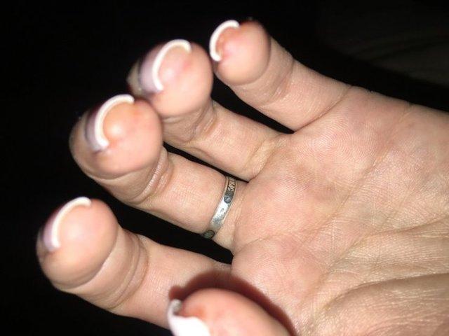 Алергія на гель-лак: чим лікувати пальці і руки?
