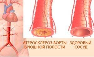 Інфаркт кишечника: визначення хвороби, симптоми і прогноз для життя