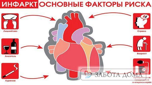 Смерть від інфаркту міокарда ознаки: перші ознаки і що відчуває людина