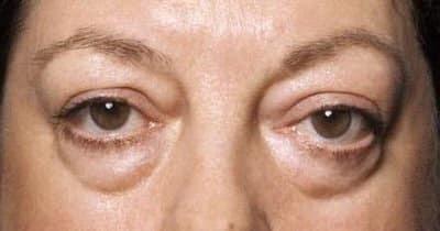 Набряки під очима набряки під очима: причини і лікування у жінок і чоловіків, як швидко позбутися