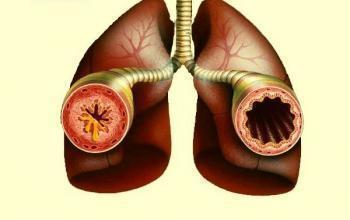 Цетрин таблетки від алергії: ціна ліки і побічні дії