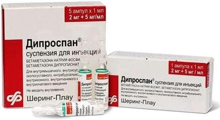 Симптоми і лікування шийного остеохондрозу у жінок, особливо