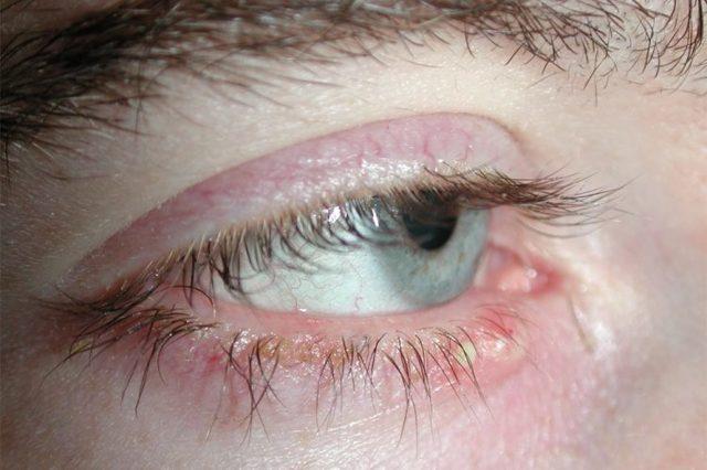 Мейбоміт нижнього або верхнього століття: лікування, симптоми мейбомиевой блефарити очей